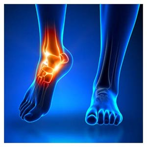 عکس با کیفیت درد مچ پا (Ankle pain)