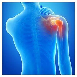 عکس رایگان کتف درد (درد در شانه)(Shoulder pain)