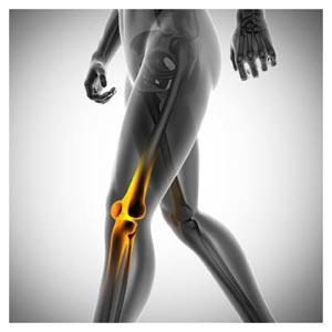 دانلود رایگان عکس درد در زانو (زانو درد)(Knee Pain)