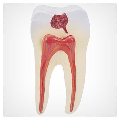 دانلود تصویر دندان با جزئیات داخلی مثل رگ ها و ریشه و عصب و یک پوسیدگی